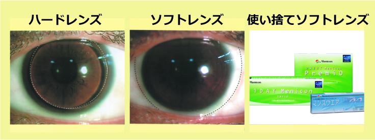 レンズの種類